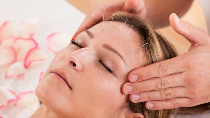 Schoenheits Akupunktur